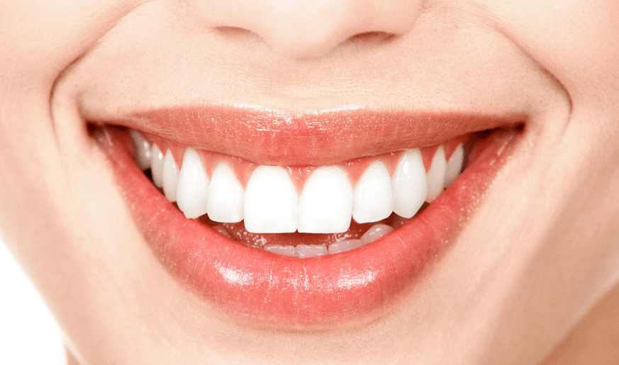 What You Need To Know About Professional Teeth Whitening Happy